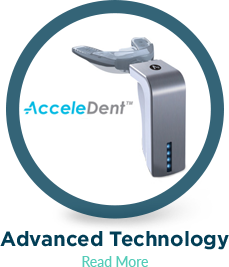 straight teeth faster with acceledent
